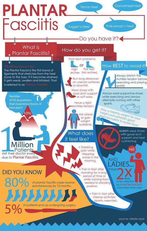 Plantar Fasciitis Infographic