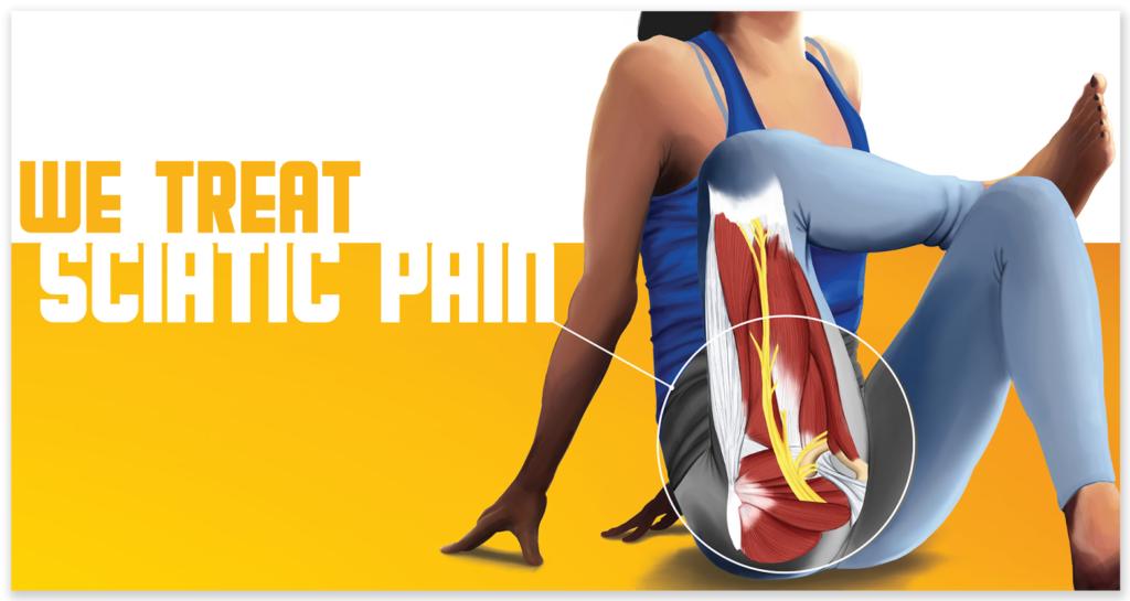 We provide treatments for acute sciatica nerve pain